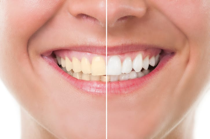 cosmetic dentist in Gresham