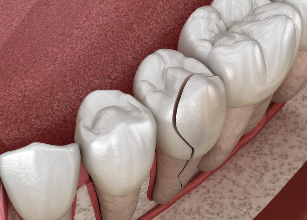 Gresham general dentist